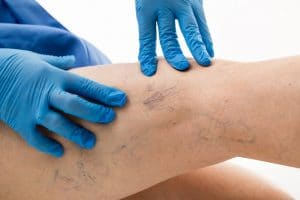 How to Treat Bad Veins with a Medical Laser